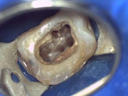leczenie kanałowe, chirurg stomatolog Gliwice